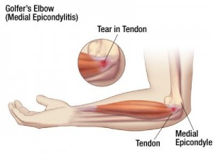 Golfers Elbow - Medial Epicondylitis