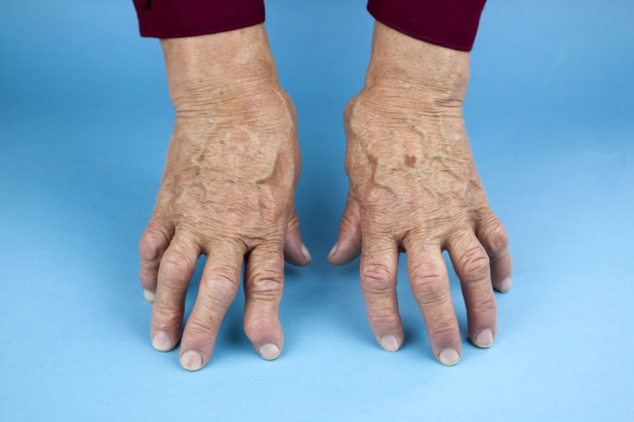 warning signs of rheumatoid arthritis